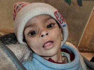 Bambino morente nel campo profughi di Yarmouk, vicino a Damasco.
