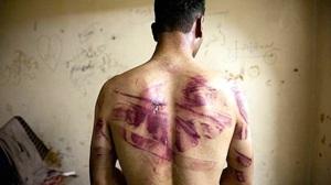 Syria-torture-AFP